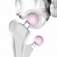 Riabilitazione Protesi di Anca